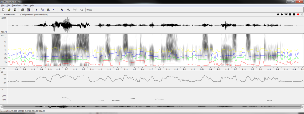 Speech Analysis in WaveSurfer